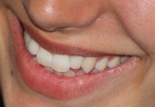 Zubi Osmeh