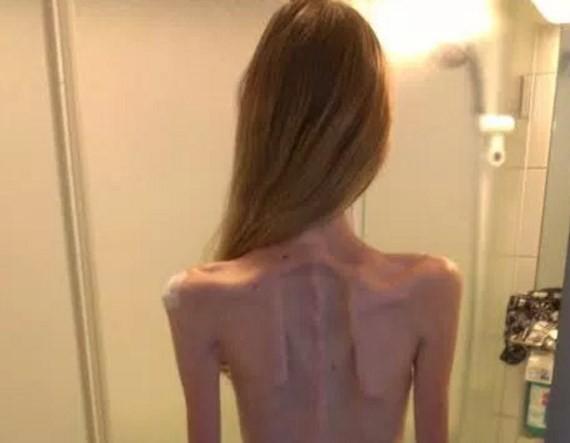 Anoreksija