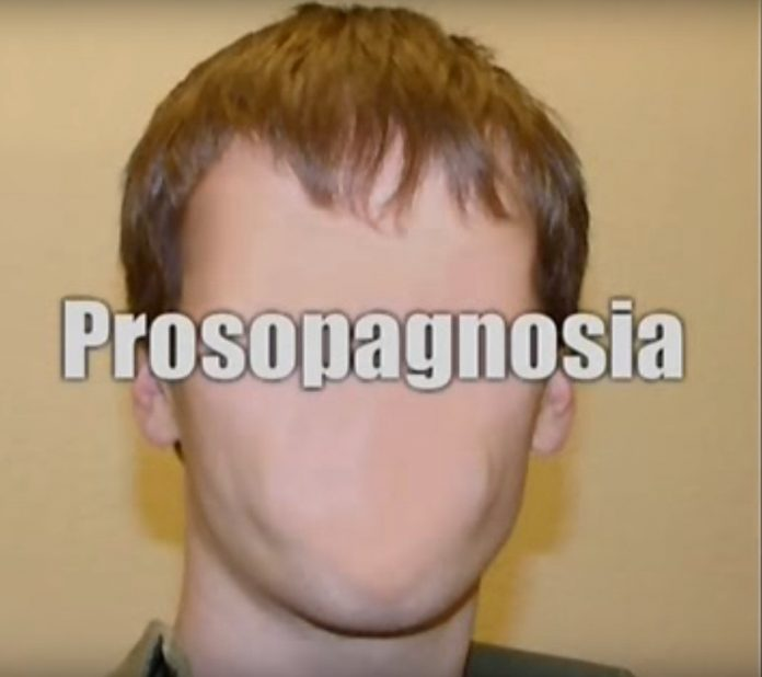 prosopagnosia